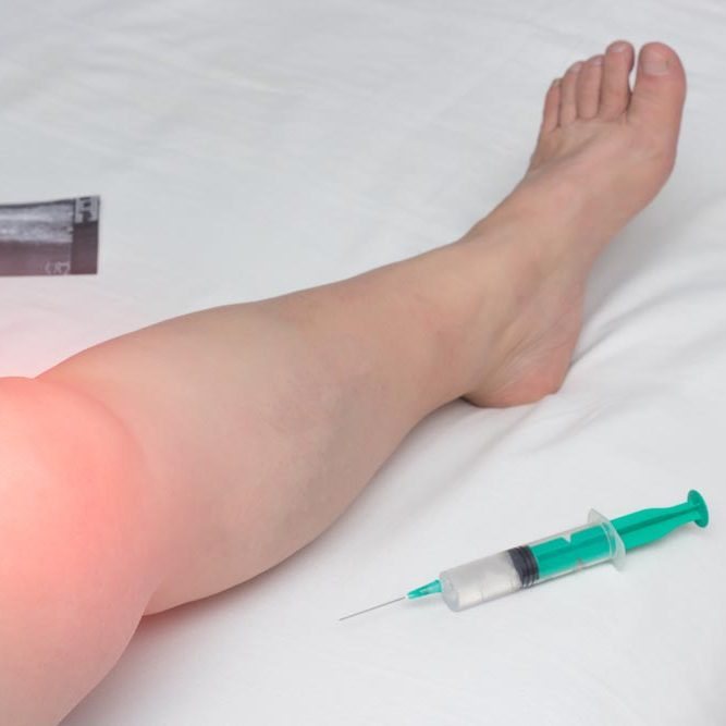 The inflamed leg of a woman with an affected knee joint from arthrosis and arthritis lies next to a syringe with Gilauri acid and a Honndroprotector, medical